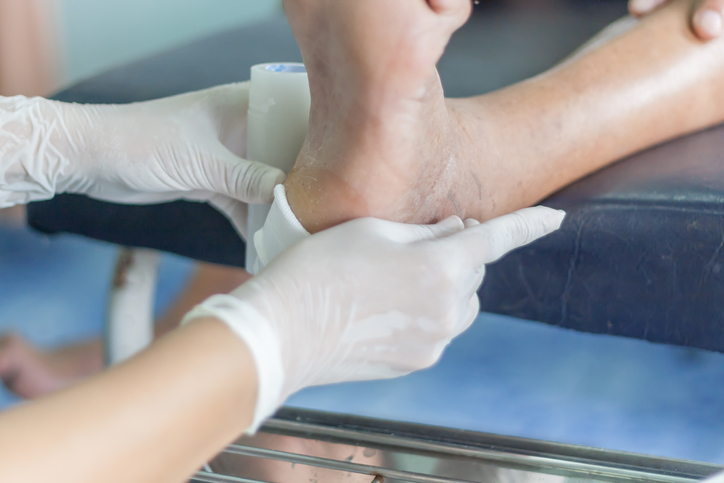 ¿Qué es el pie diabético y por qué ocurre?